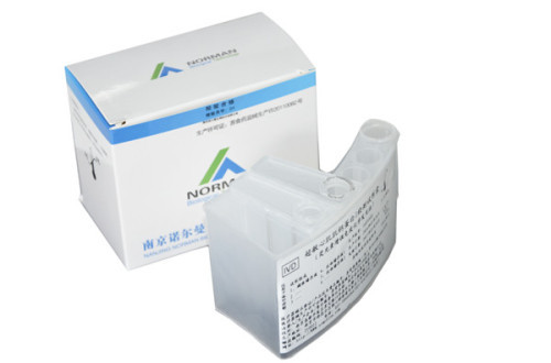Lp-PLA2 test kits for chemiluminescence assay