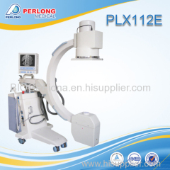 High frequency digital mobile x-ray