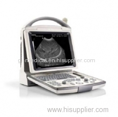 Medical hospital Diagnosis equipment handheld ultrasound equipment