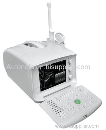 portable ultrasound device/ veterinary ultrasound equipment