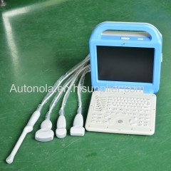 Biggest promotion cheap Laptop human ultrasound scanner