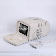 Ultrasound Machine portable Ultrasound Scanner with multi frequency probe for hospital clinics