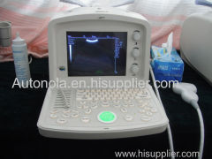 2d portable ultrasound machine price veterinary ultrasound