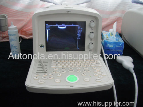 2d portable ultrasound machine price portable /veterinary ultrasound equipment