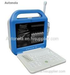 Laptop veterinary ultrasound scanner