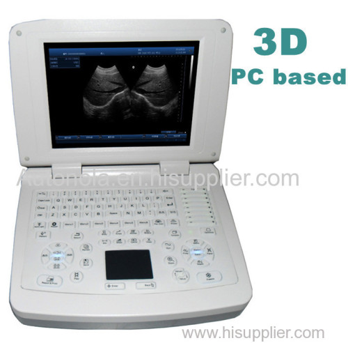 Full digital laptop veterinary diagnostic system ultrasound scanner with factory price