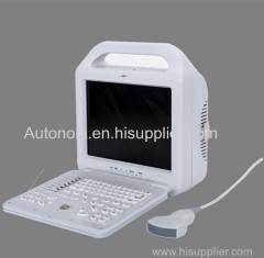 Mais barato 12 polegadas LCD monitor Digital Laptop ultra-som Scanner
