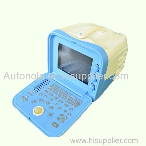 Big animal ultrasound machine & Medical equipment ultrasound scanner