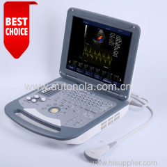 Cheap price notebook color doppler &echo doppler ultrasound