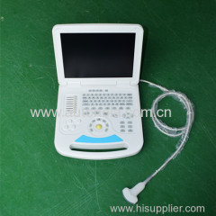 128 elements Full Digital Notebook Color Doppler