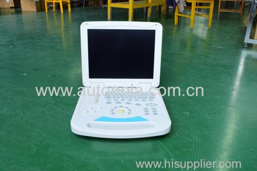 80 elements Full Digital Notebook Color Doppler ATNL6800
