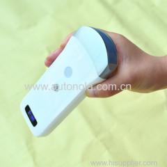Wifi sonda convexa inalámbrica wifi ultrasonido sonda convexa
