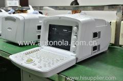 Escáner de ultrasonido portátil digital