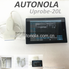 linear probe ultrasound scanner