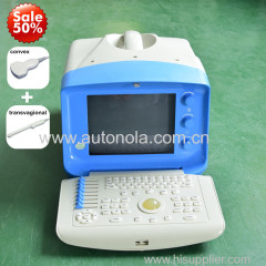 Portable cheap price easy operate bule head portable ultrasound scanner for hospital and clinic