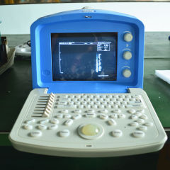 New portable ultrasound scanner
