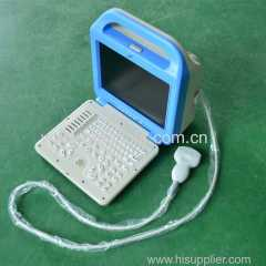 China manufacturer laptop ultrasound scanner
