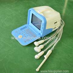 CE ISO ultrasound machine portable