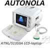China Autonola Medical full digital Ultrasound Diagnostic System portable powerful ultrasound machine
