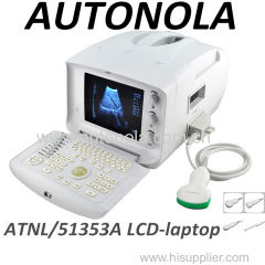 Portable Human Ultrasound Scanner Machine With First rate Attractive And Reasonable Price