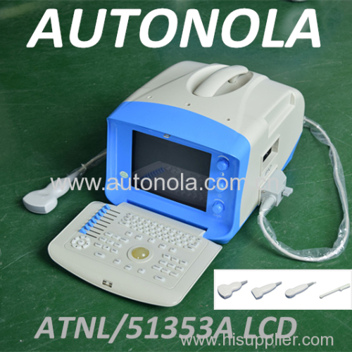 Factory price Ultrasound for Veterinary Digital Portable Animal Ultrasound Scanner
