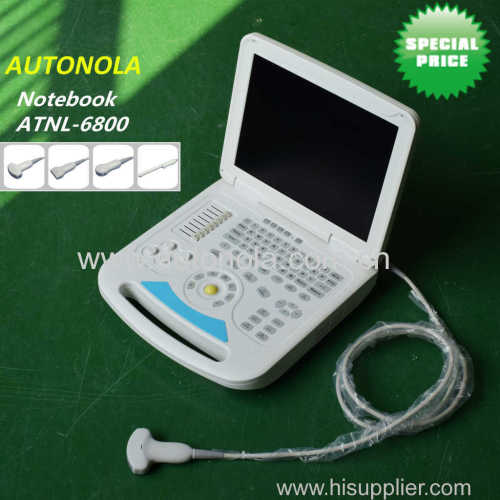 Full-digital Cheap Notebook Color Doppler System Convex Linear MicroConvex Transvaginal Probe