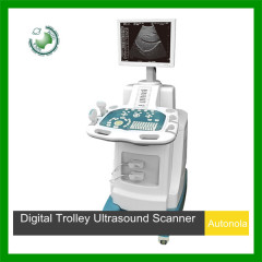 Digital Trolley Ultrasound Scanner with CE and ISO