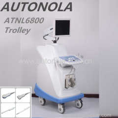 Cardiology ultrasound Trolley color doppler