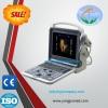 Laptop 3D Update 4D Color Doppler Ultrasound Medical Equipment cardiac ultrasound