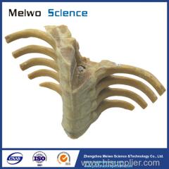 Human section of vertebral column specimen plastination