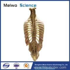 Human vertebral column plastinated specimen for medical students