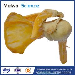 Medical shoulder joint plastinated specimen for teaching