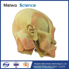 Superficial muscle of masticatory specimen for medical university