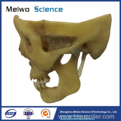 temporal-mandibular joint plastinated specimen for medical university