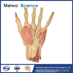 Middle muscle of human hand plastinated specimen