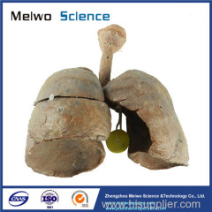 Child lung and larynx medical specimen plastination