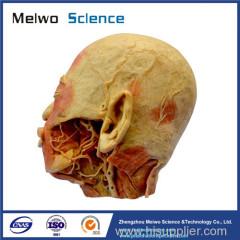 External carotid artery plastinated specimen for medical university