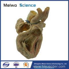 Cardiac conduction system plastination specimen