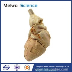Human cardiac muscle plastinated specimen