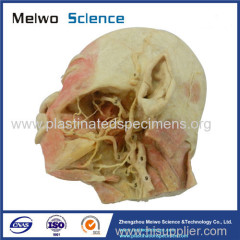 Deep vascular nerve of head and face plastinated specimen