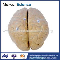 Human cerebral arachnoid mater plastinated specimen