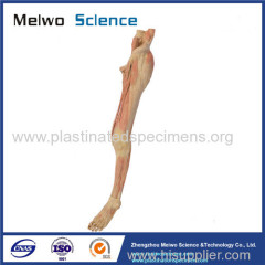 Superficial vein and nerve of lower limb plastinated specimen