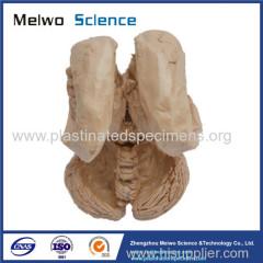 Human brain stem and cerebellum plastinated specimen