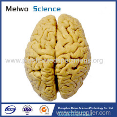 Human whole brain plastination specimen