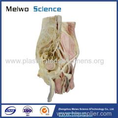 Sagittal section of male pelvic plastinated specimen