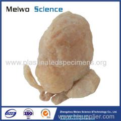 Prostate seminal vescle bladder plastinated specimen