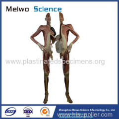 Divided people medical specimen plastination