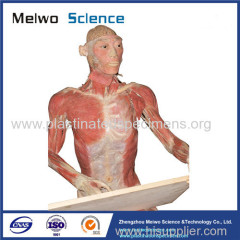 Medical drawing plastinated specimen