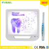 5.0mage Dental Endoscope 17inch LCD Monitor USB Intra Oral Camera