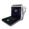 Portable Color Doppler Ultrasound Diagnostic System